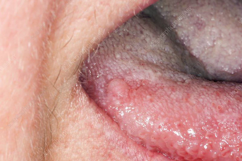 squamous cell papilloma under tongue)