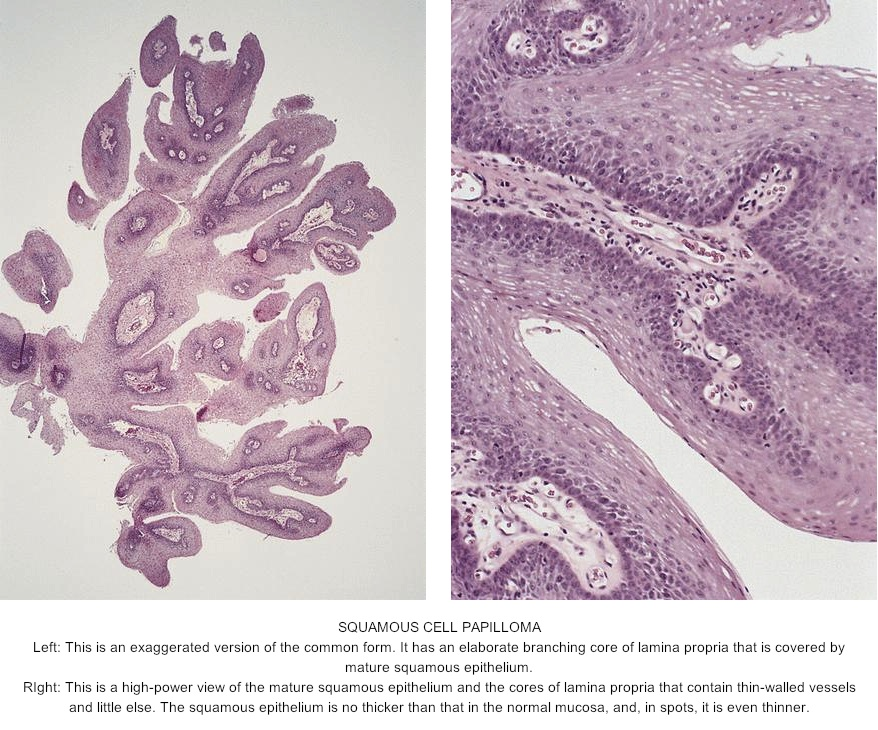 Esophagus papilloma pathology outlines Helmintii se numesc toți viermi