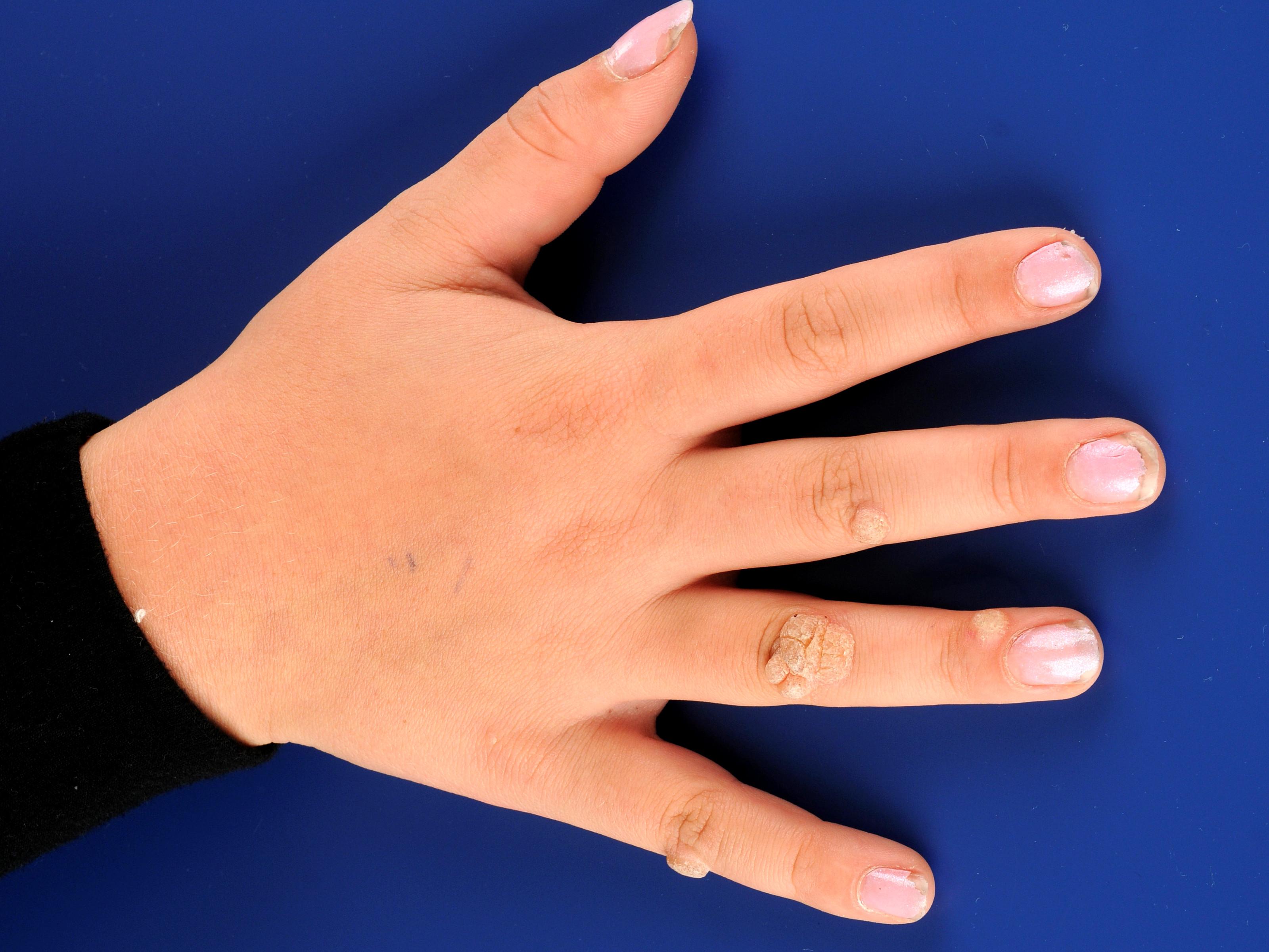 medicament paraziti intestinali adulti atunci când dispar verucile genitale