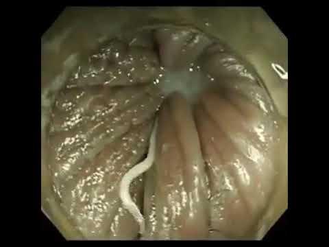 tablete de vierme de ou recenzii