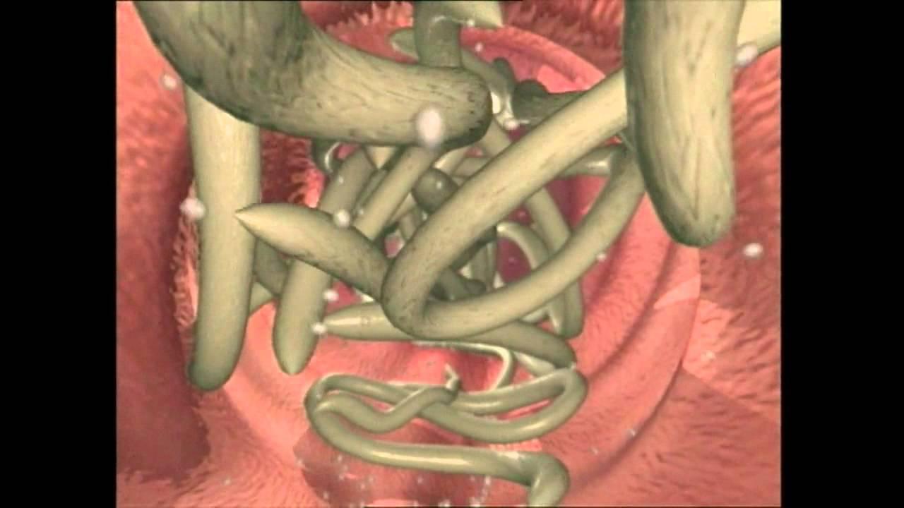 tratament viermi rotunzi și viermi