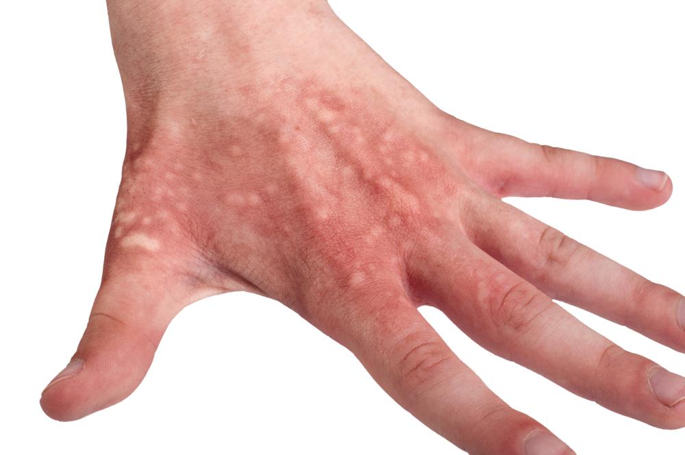 tratamentul arsurilor între degete