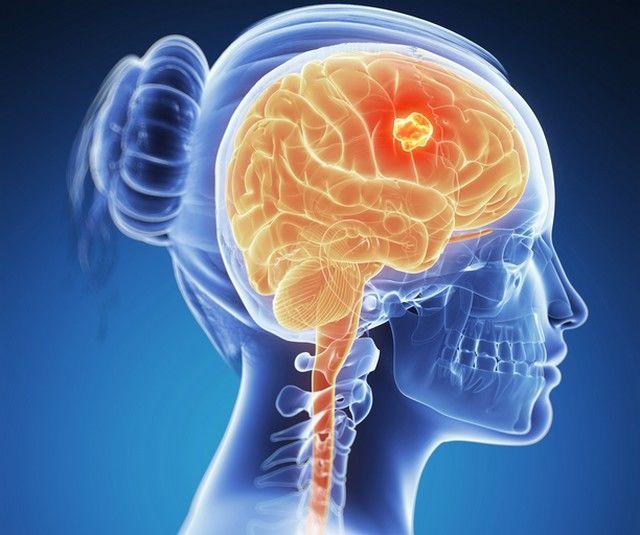 tratamentul viermilor creierului)