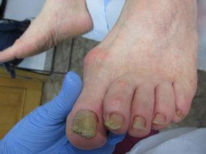 ulcere între tratamentul degetelor de la picioare