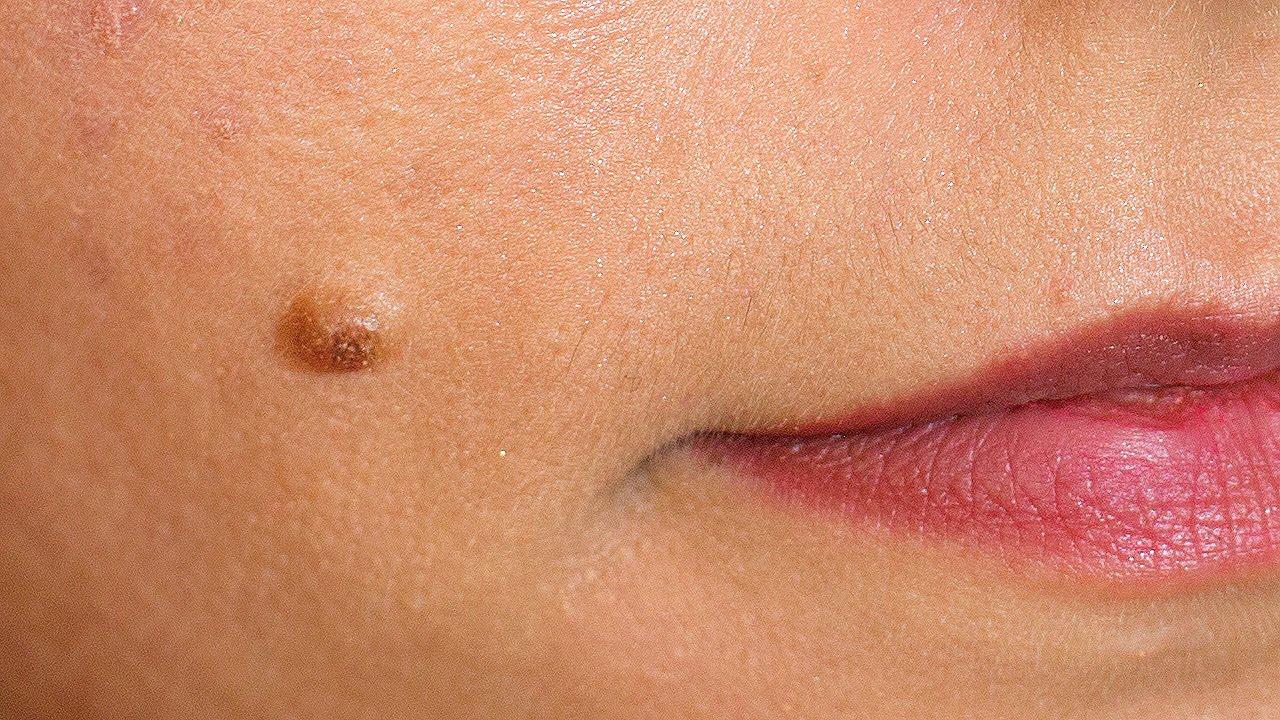 papilloma vs papilloma ce medicamente provoacă viermii în viermi