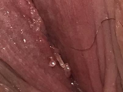 Orl 27 (2) Full by Versa Media - Issuu - Vestibular papillomatosis or herpes