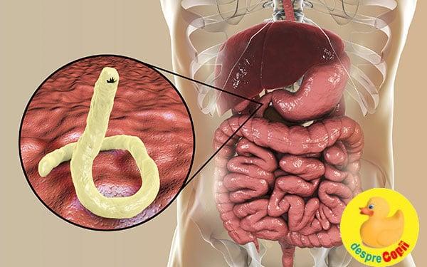 viermi și sarcină