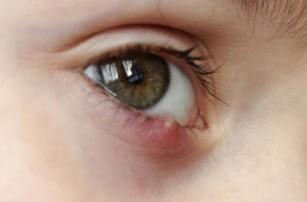 viermi în ochi decât pentru a trata