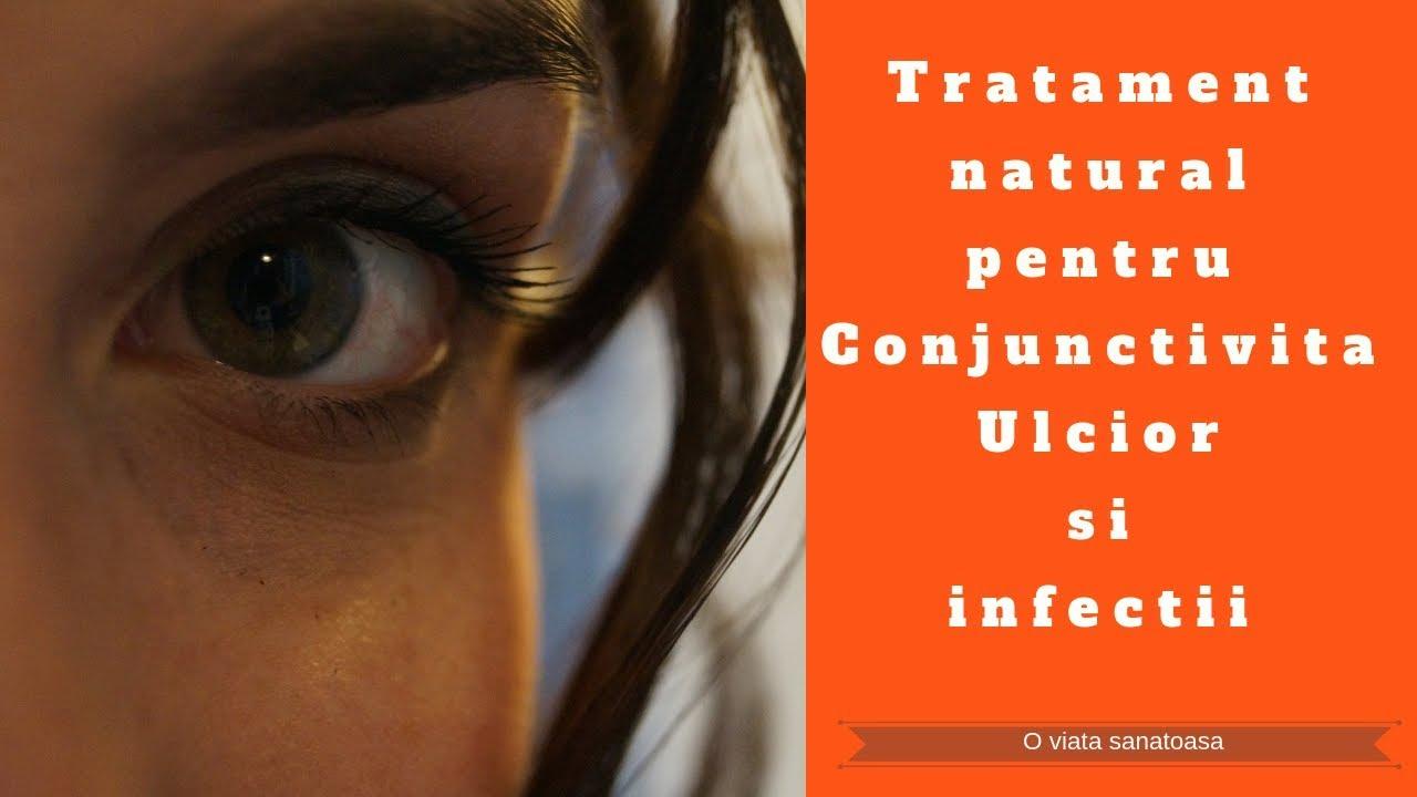 viermii din ochi sunt simptome ale tratamentului condiloame la femeile infectate