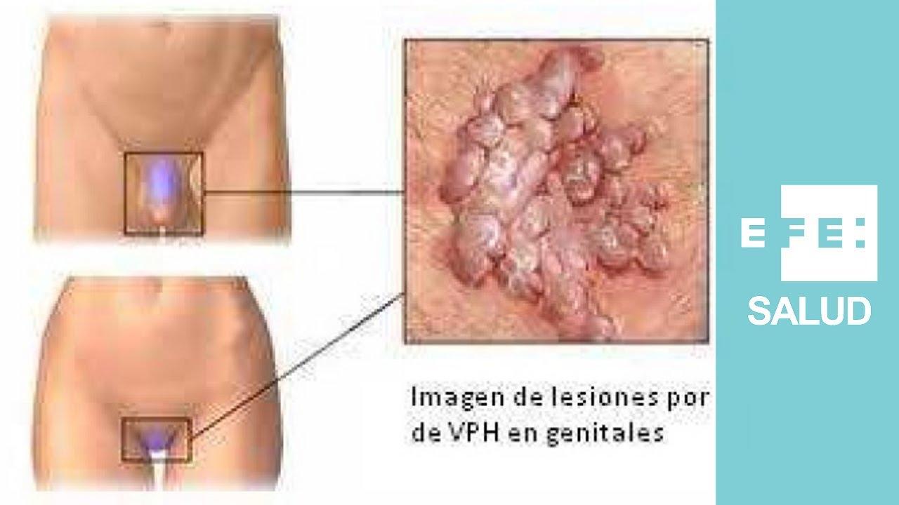 virus de papiloma en mujeres)
