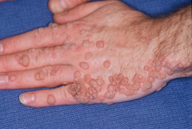 tratamentul viermilor pentru simptomele vezicii biliare margele albe