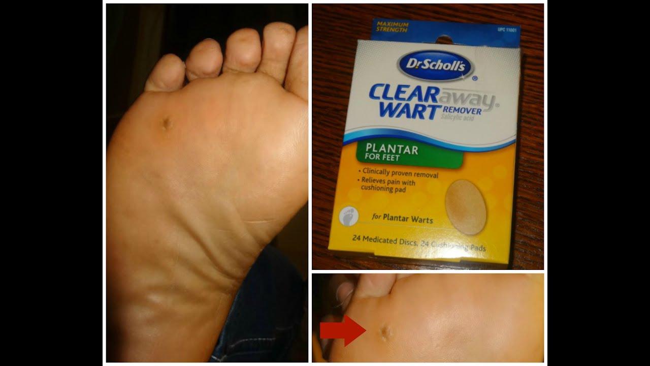 wart on foot pad)