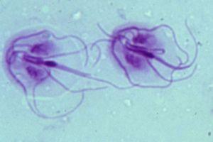 lo ordine de gaură de vierme papiloma fibroepitelial
