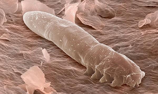 Blastocystis hominis parazit tedavisi