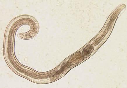 enterobius vermicularis larva)