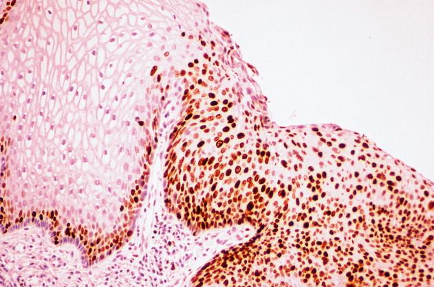 squamous papilloma esophagus p16