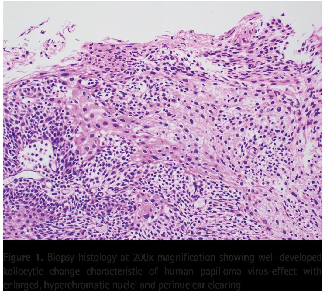 Hpv linked to bladder cancer