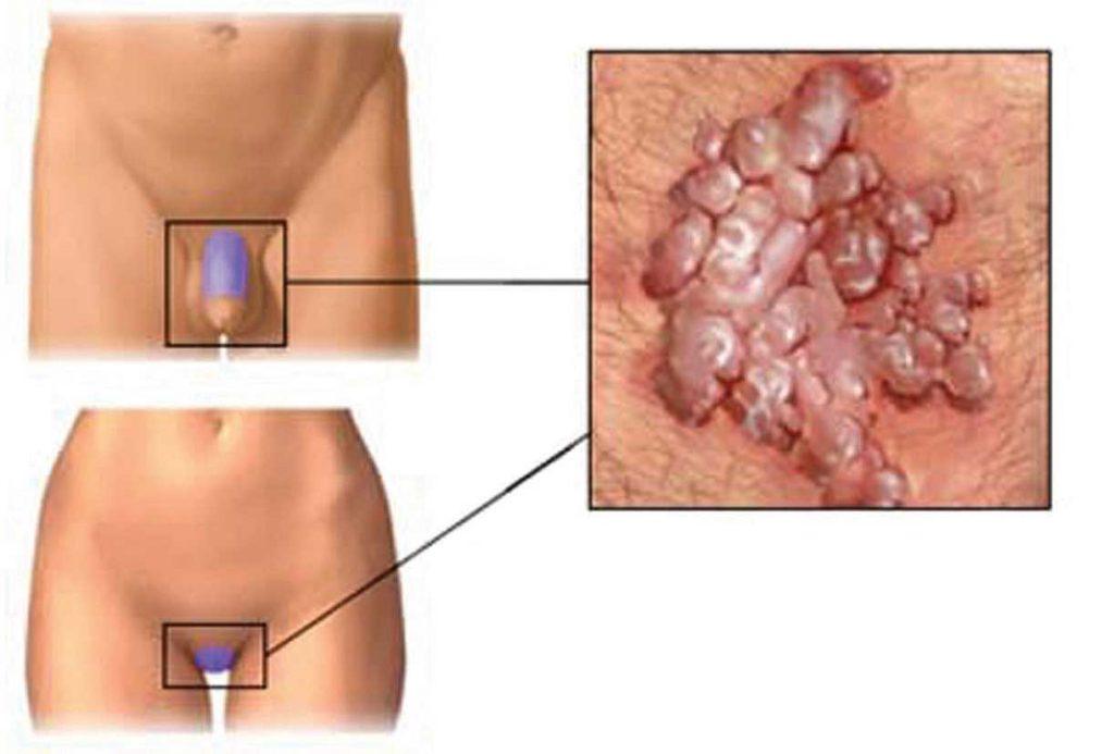 eroziuni ale verucilor genitale hpv high risk atypical squamous cells