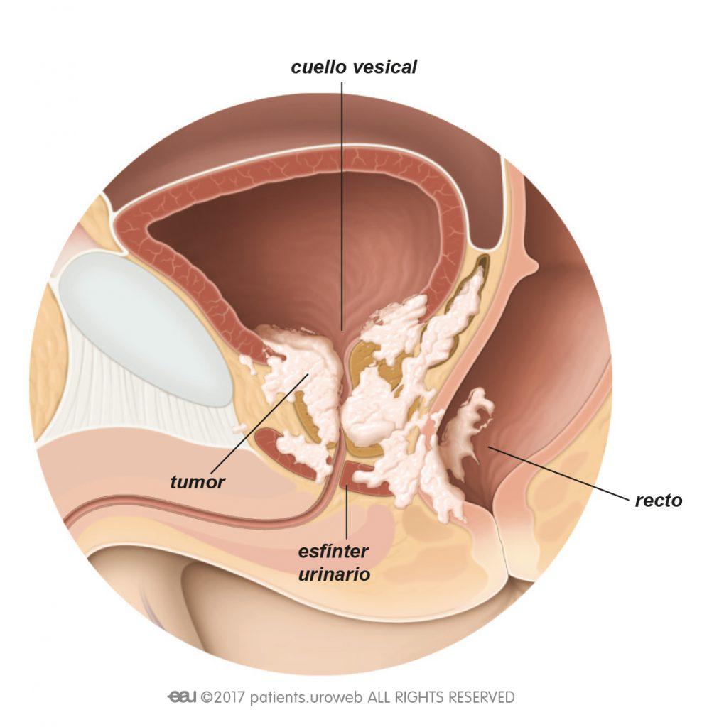 condiloame pe simptomele uretrei