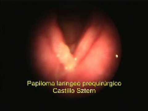 papiloma virusi qartulad