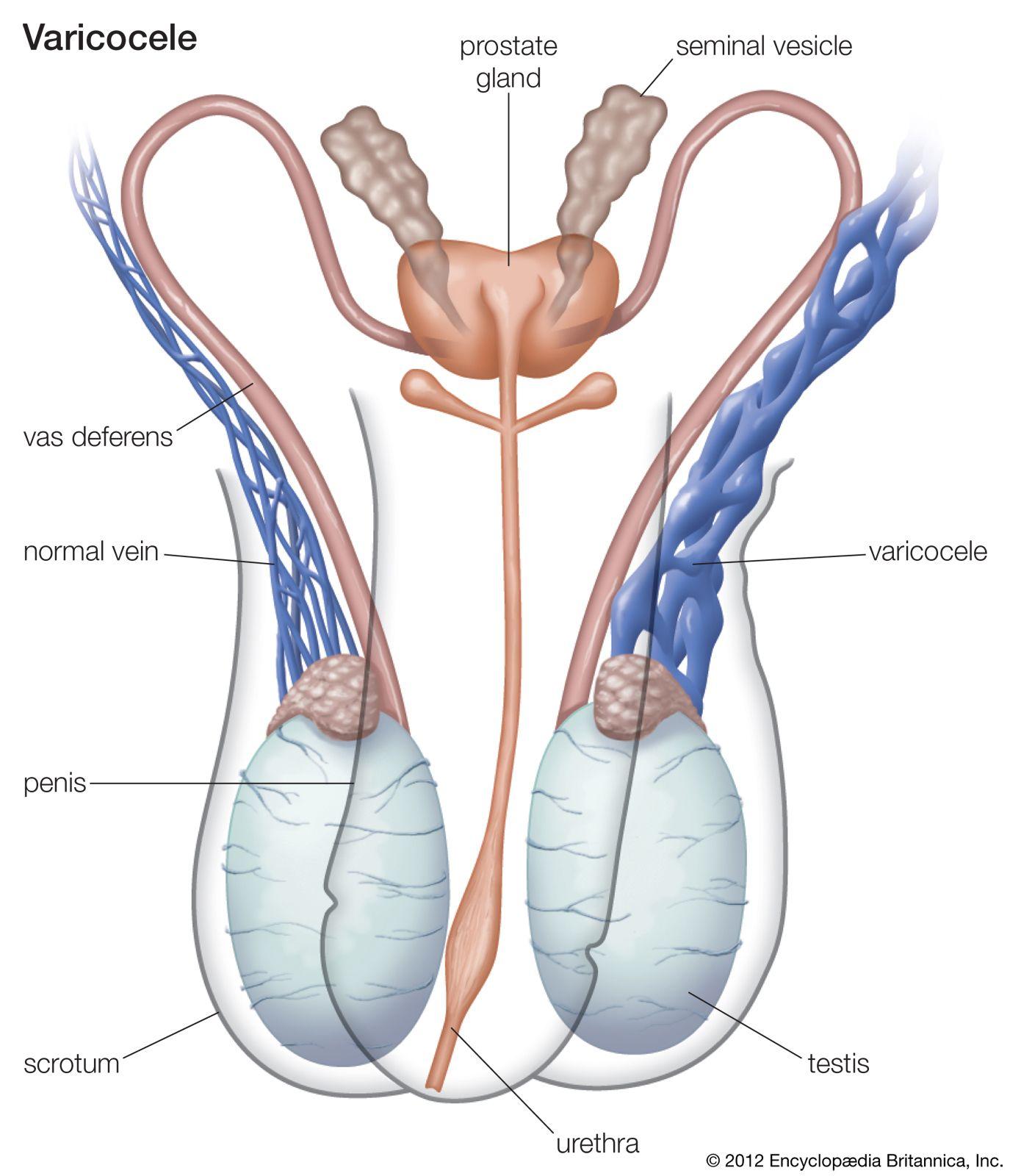 ovarian cancer in lymph nodes