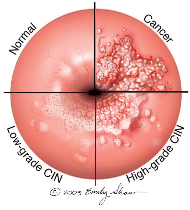 genital warts and prostate cancer)