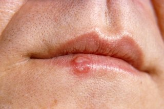 hpv mouth cold sores)