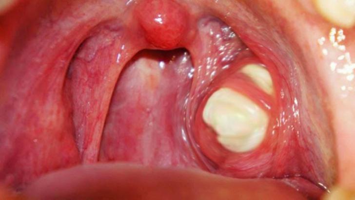 Halena (halitoza) respiratia urat mirositoare.