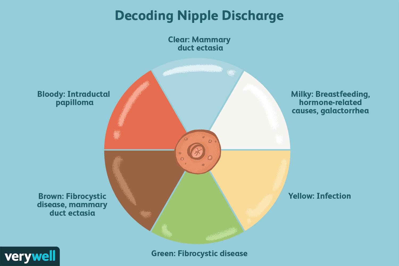 Natural treatment for breast papilloma - Mult mai mult decât documente.