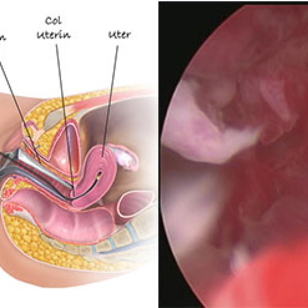 secretia din cancerul de endometru