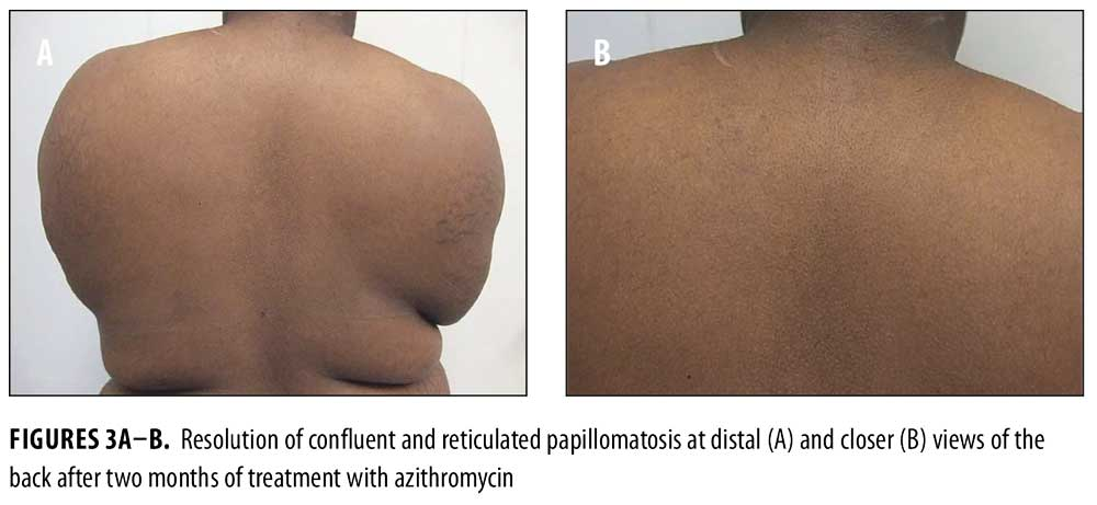 treatment of confluent and reticulated papillomatosis)