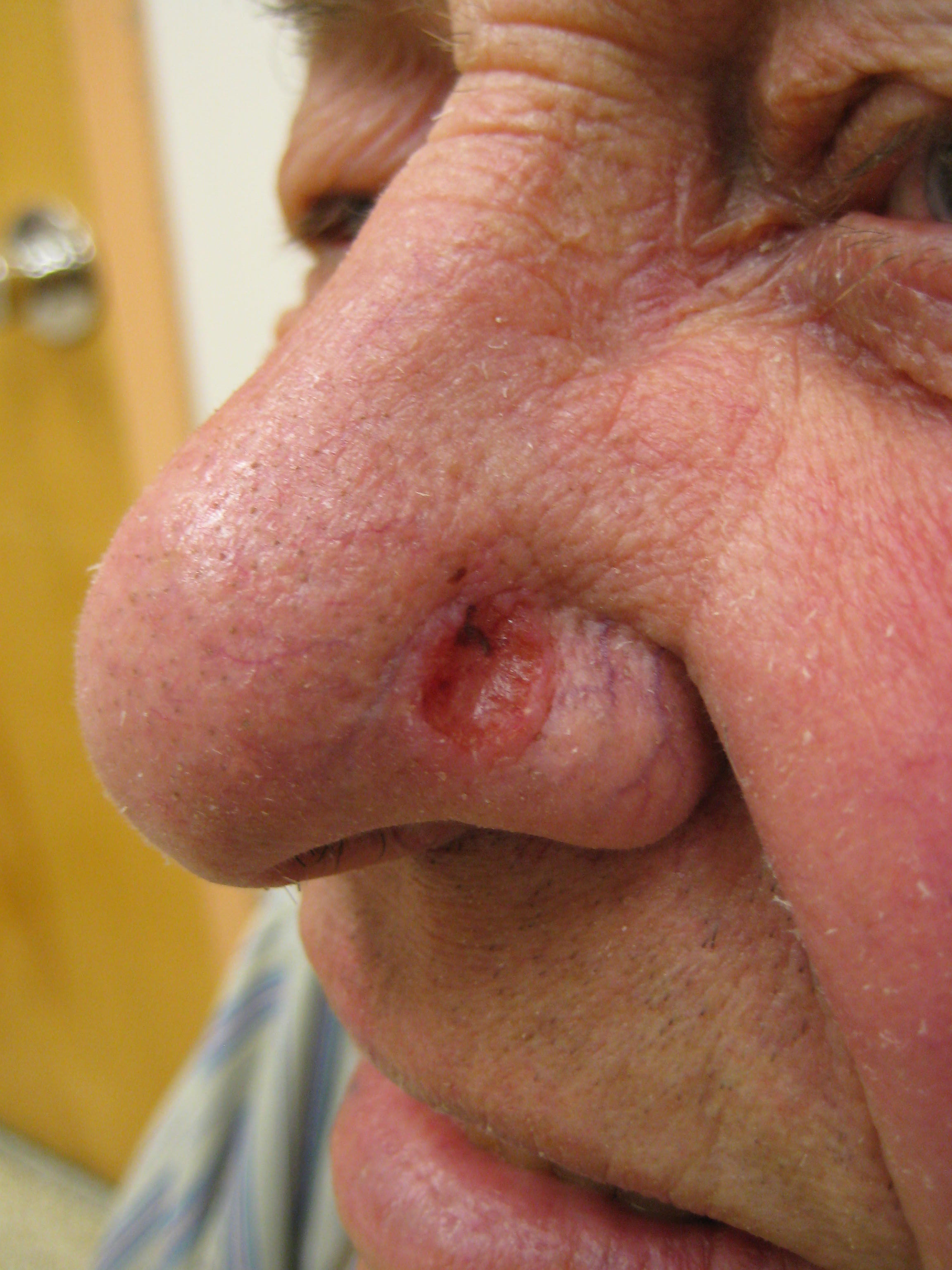 Skin papilloma excision, Ovarian cancer types