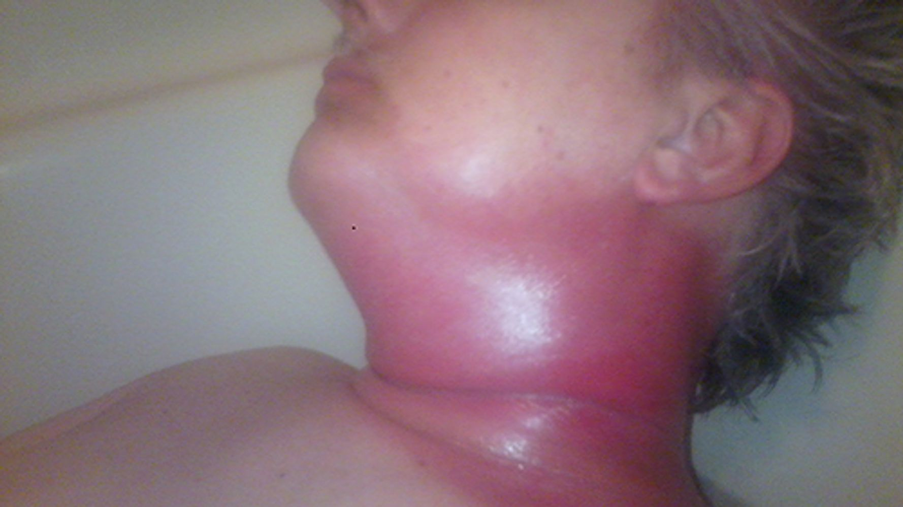 Hpv burning throat. Esophageal cancer caused by hpv