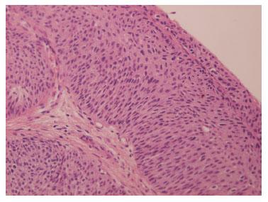 papiloma benigno vejiga