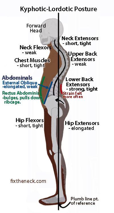 dureri abdominale giardioase dacă papiloamele pot fi îndepărtate