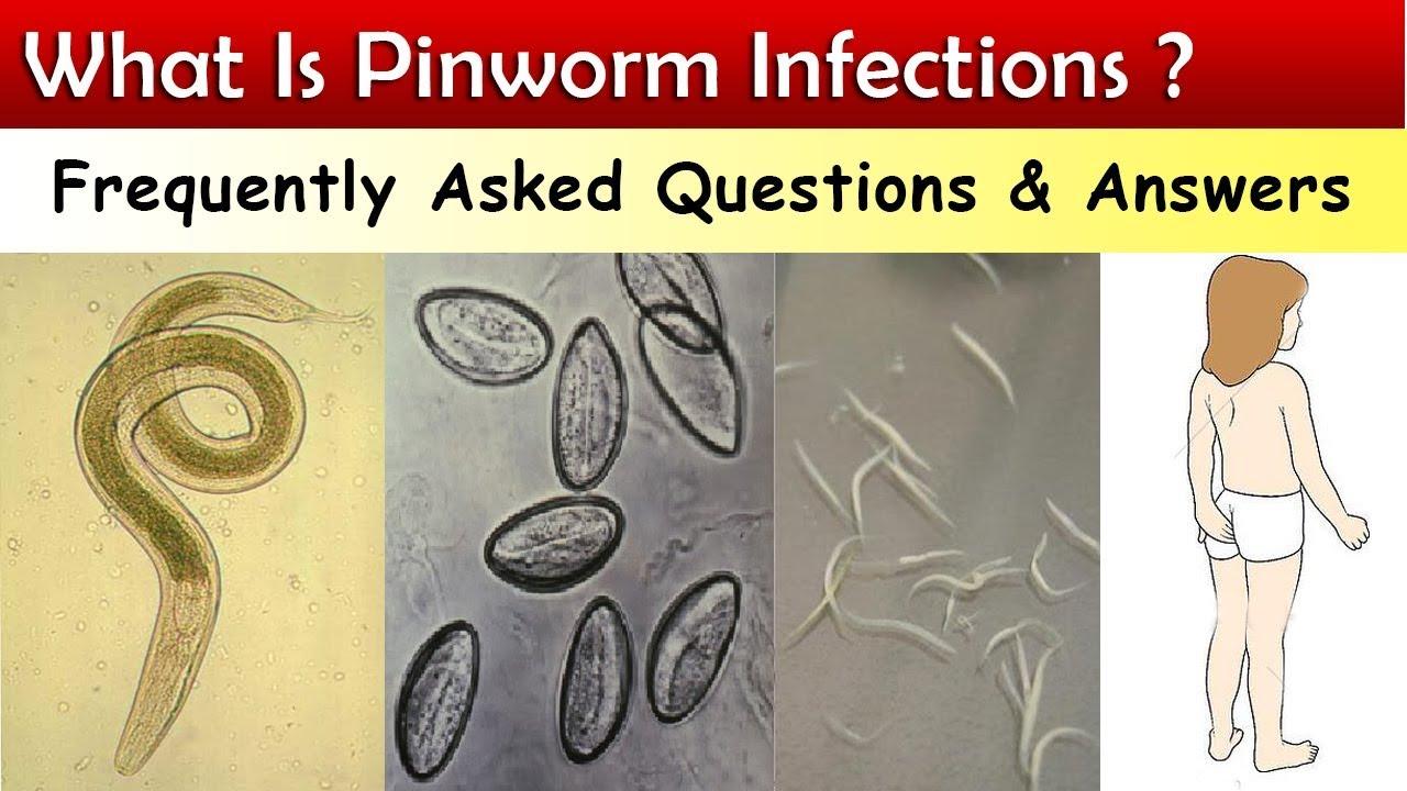 cum să recunoască pinworms et)