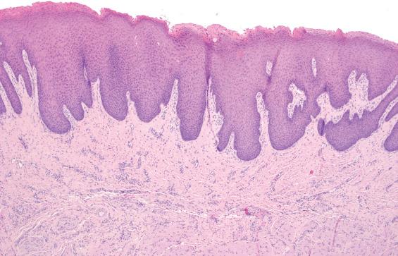 condyloma acuminatum mit jelent