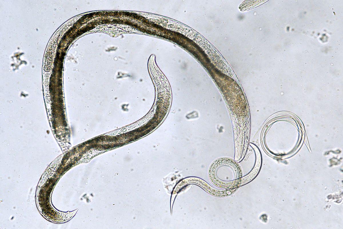 cum să elimini viermii din scaun centre de detoxifiere a colonului