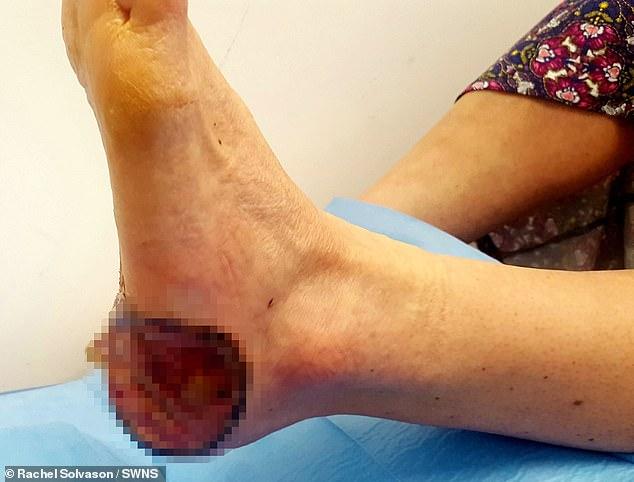 wart treatment left hole