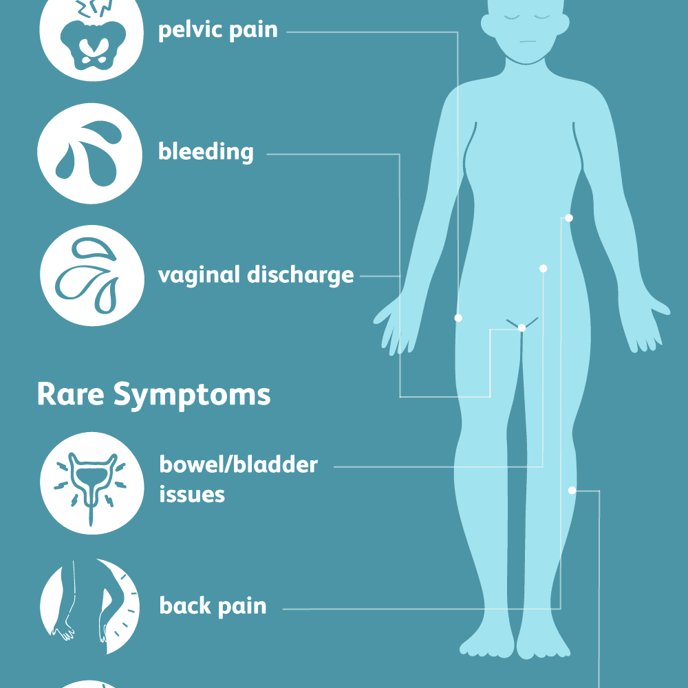 ovarian cancer hip pain)