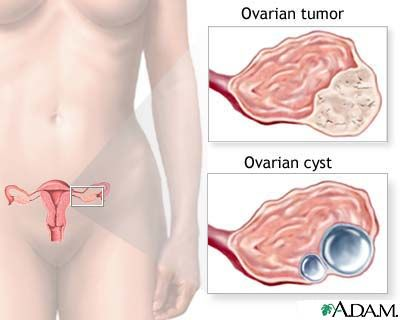 cancer simptome femei)