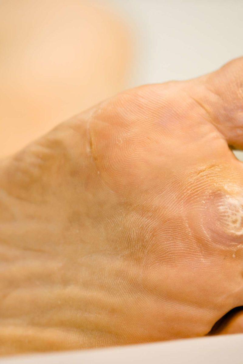 wart foot bottom)