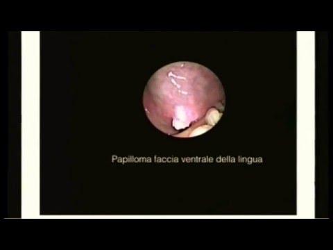 papilloma virus verruche lingua