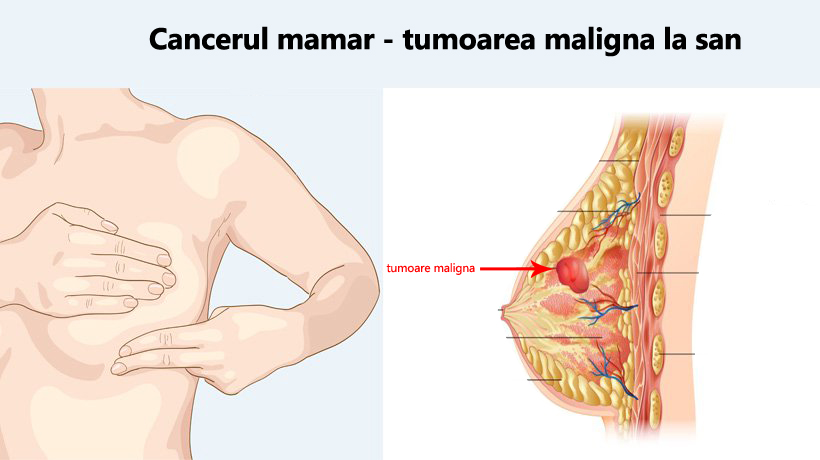 cancerul mamar simptome)