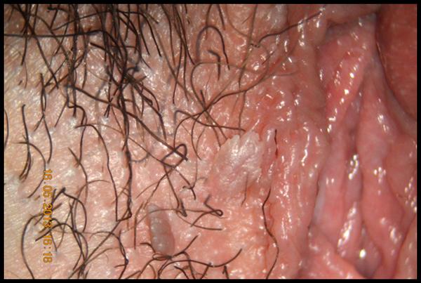 più protetta con il vaccino, Papilloma virus lesioni precancerose, Papilloma virus con lesioni