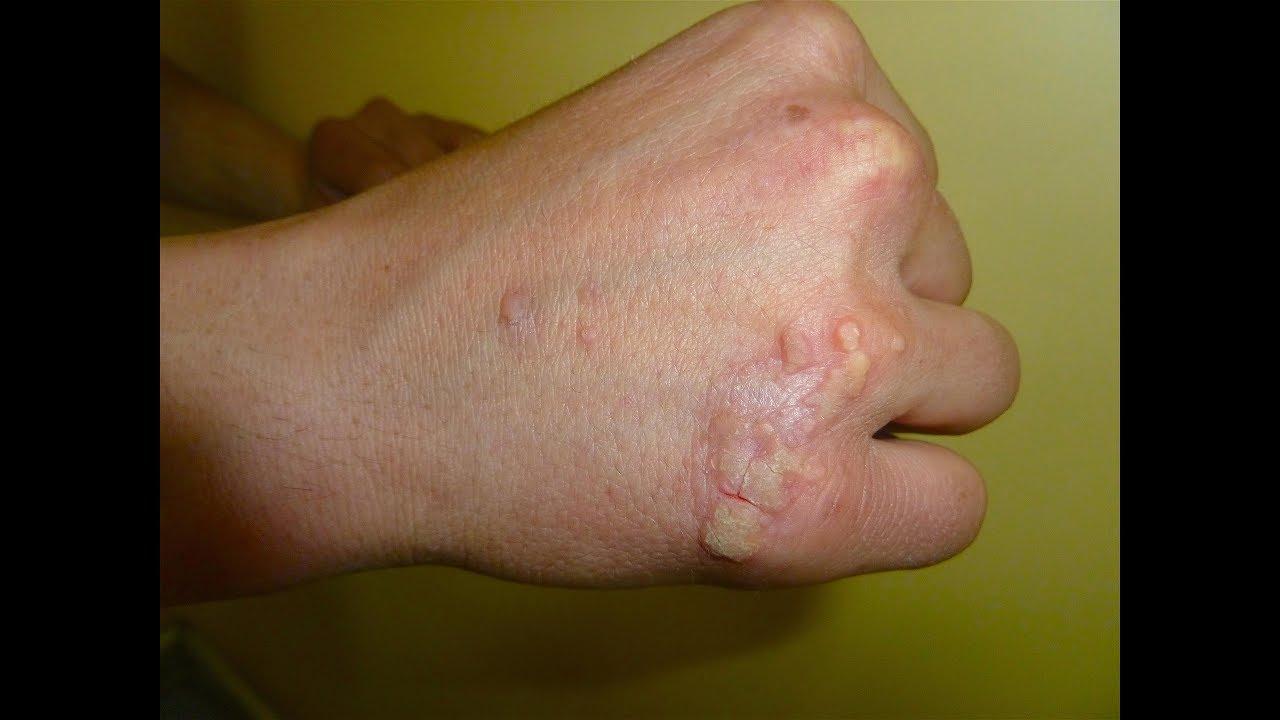 papilloma virusu neden yaranir
