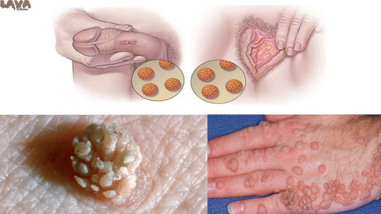 Hpv vs herpes simplex