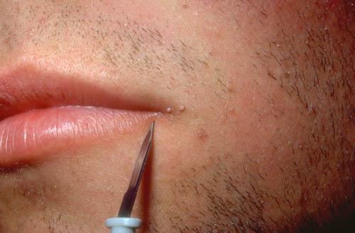 hpv lip wart treatment)