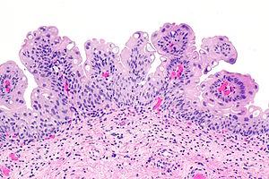urinary bladder papilloma pathology)