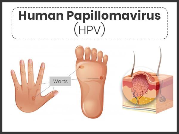 what does human papillomavirus cause)